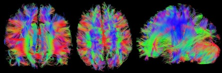 brain-1728449_960_720