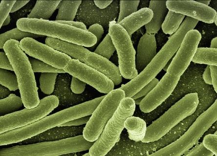 koli-bacteria-123081_960_720.jpg